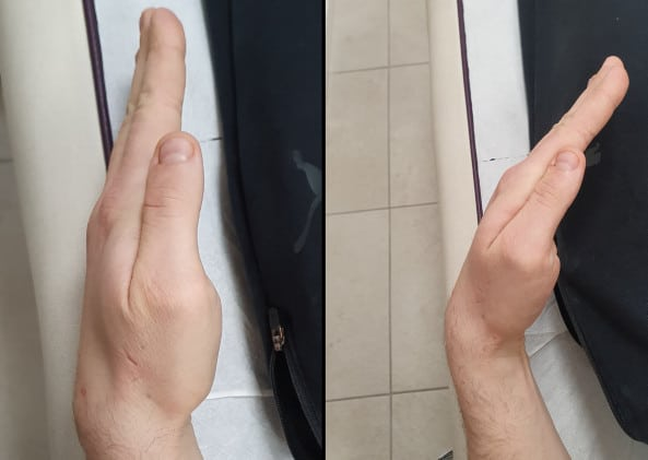 terapia manualna nadgarstka (przed/po)
